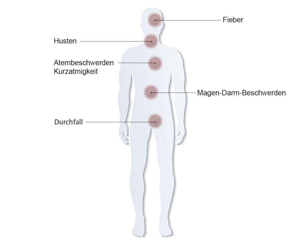 Das Coronavirus verursacht grippale Symptome wie Husten oder Atembeschwerden. Oft ist eine nicht behandelbare Lungenentzündung erkennbar, die potenziell lebensbedrohlich ist. Das Coronavirus verursacht grippale Symptome wie Husten oder Atembeschwerden. Oft ist eine nicht behandelbare Lungenentzündung erkennbar, die potenziell lebensbedrohlich ist. Abbildung: ©Hugentobler